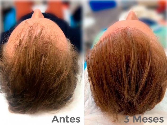 Cómo recuperar el pelo caído