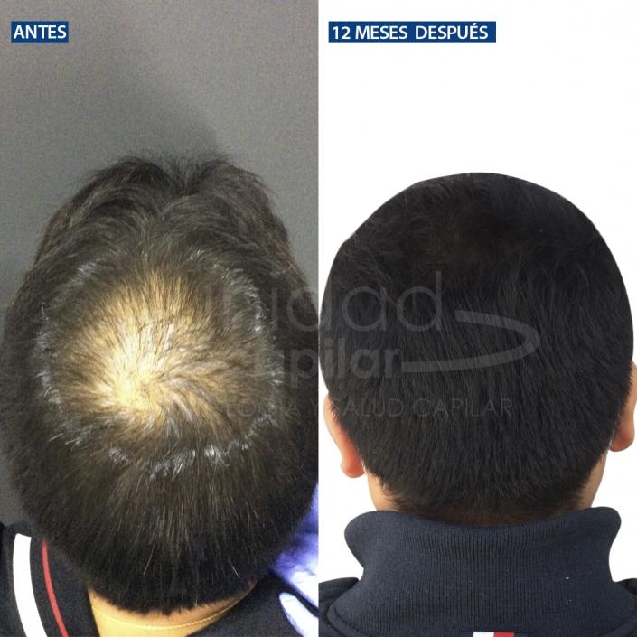 Recuperar el cabello perdido